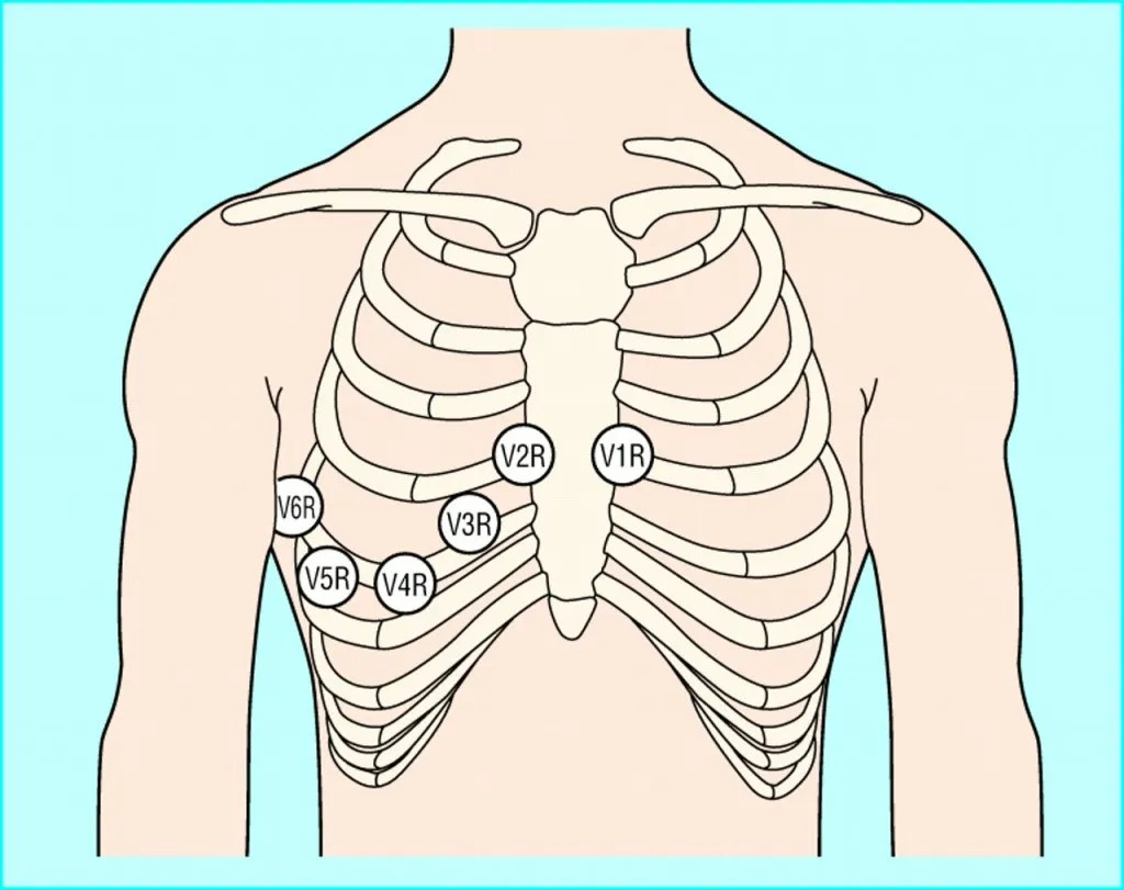 hight resolution of at a minimum lead v4 should be placed on the 5th intercostal mid clavicular exact opposite of the regular left side placement if an inferior infarct was