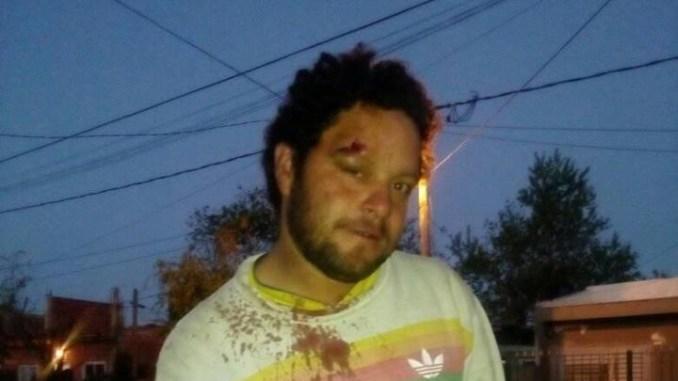 Daniel Mancini agredido