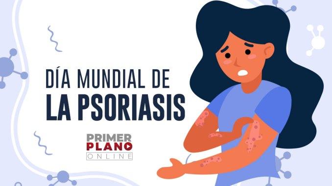 29 de octubre día mundial de la psoriasis