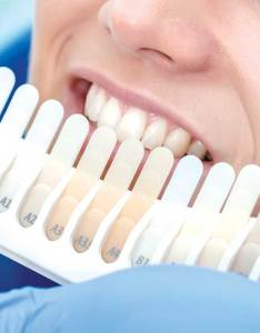 How can  make teeth whitening last longer also tooth princes street dentist rh princesstreetdentist