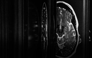 Thumbnail for The Brain as Open Book