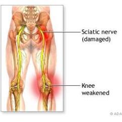 L4 Nerve Pain Diagram 2002 Ford Windstar Engine Sciatica And Pregnancy Treatment ???? -- Treat Now | Prlog