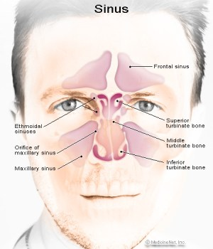 Signs And Symptoms Of Sinus Infection ????  The Sinus Infection Cure | PRLog