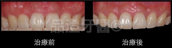 牙冠增長 - 品 澄 牙 醫 診 所