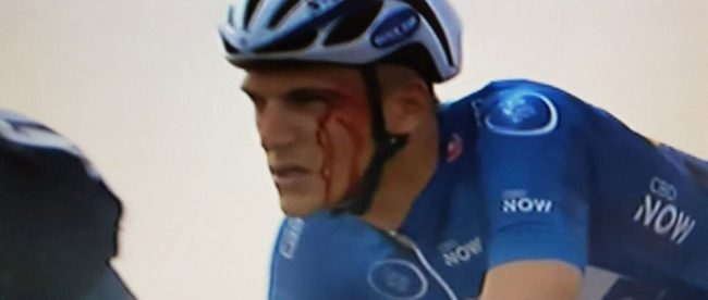 Marcel Kittel after being punched by Andriy Grivko - Tour of Dubai