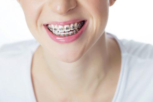 tratamientos ortodoncia Málaga