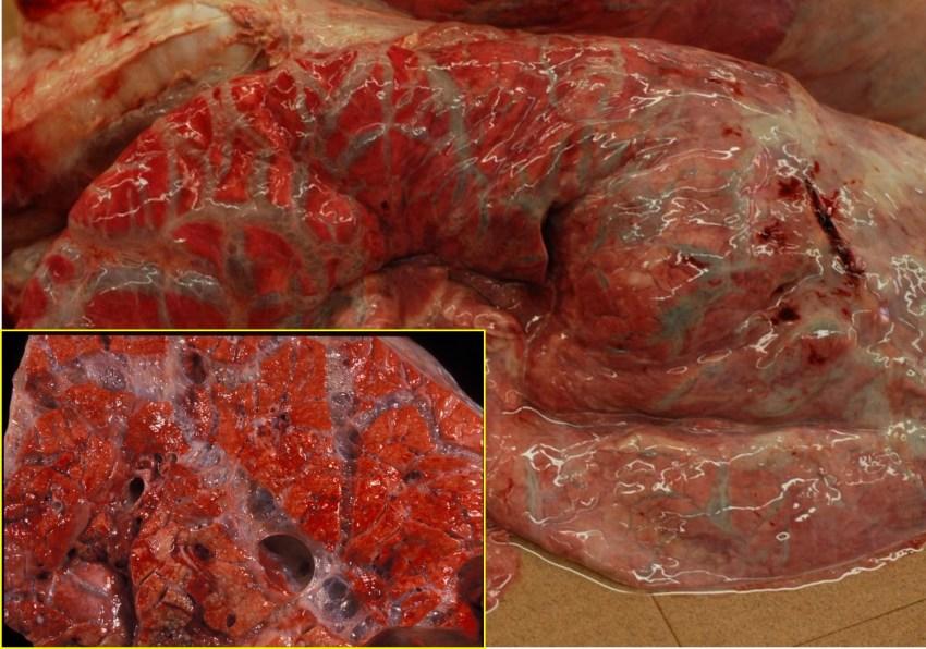Fig. 11: Enfisema intersticial. Burbujas de aire en los tabiques interlobulillares.