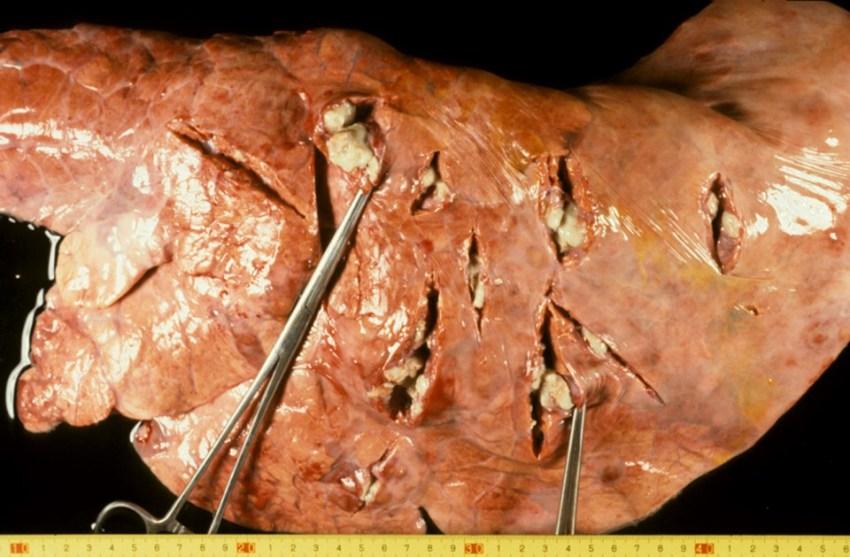 Fig. 14: Neumonía embólico-metastática. Múltiples nódulos inflamatorios con contenido necrótico-purulento en la zona central.