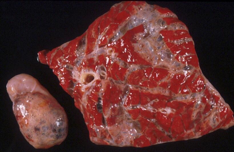 Fig. 17: Enfisema de los pastos. Intenso edema y enfisema intersticial, que también afecta al nódulo linfático.