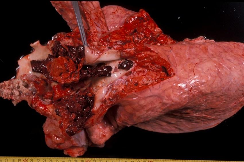 Fig. 6: Hemorragia tras la rotura de un vaso que sufría un aneurisma en un caso de síndrome de la vena cava.
