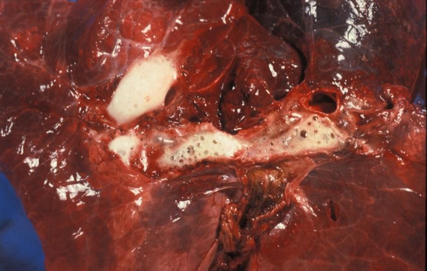 Fig. 9: Edema alveolar. Contenido espumoso en la luz de los bronquios.