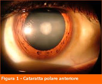 Cataratta polare anteriore-Professione Oculista