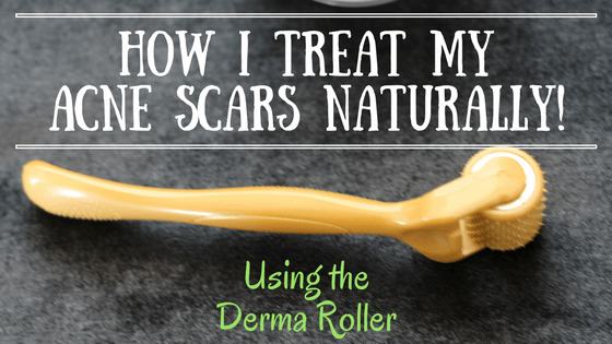 How I treat my acne scars naturally using the Derma Roller!