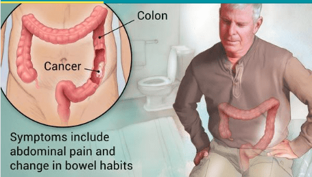 Rectal Cancer Treatment in Pune