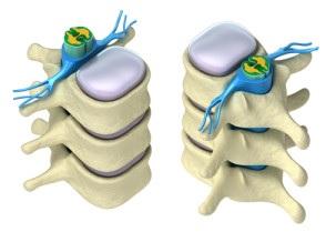 Omurga-tedavisinde Theraflex