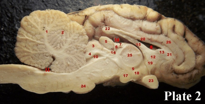 brain diagram sagittal view uk house wiring lighting sheep picsq flashcards by proprofs