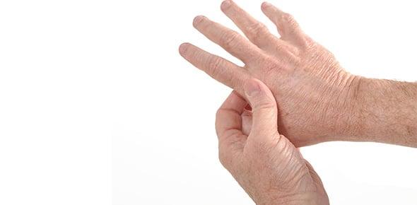 Arthritis Quizzes, Arthritis Trivia, Arthritis Questions