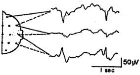 Trivia: R.EEG.T Certification Test For Technicians