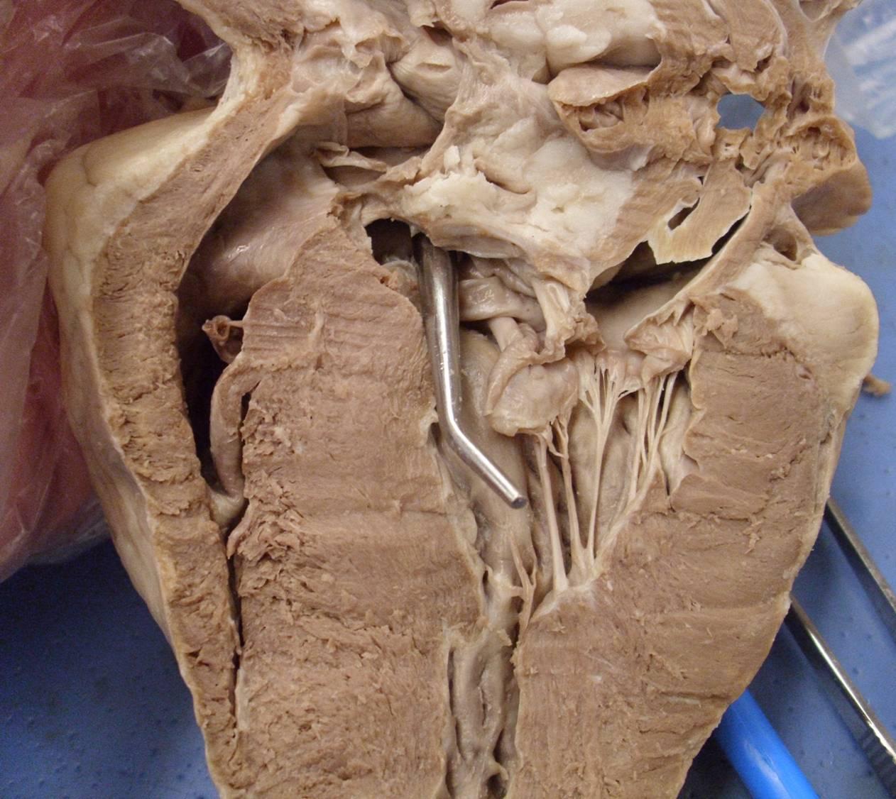 Heart Model Amp Sheep Heart Practice Quiz