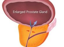 Swollen Prostate Gland
