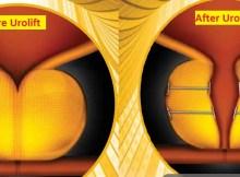 urolift implant procedure