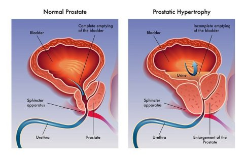 bigstock-Prostatic-hypertrophy-67369054