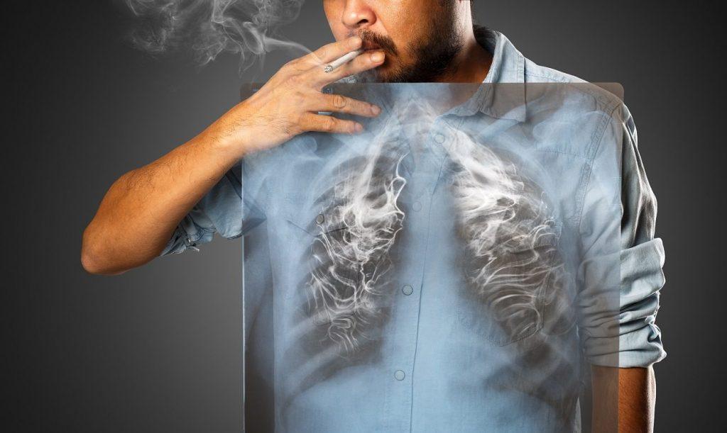Αποτέλεσμα εικόνας για διακοπή του καπνίσματος