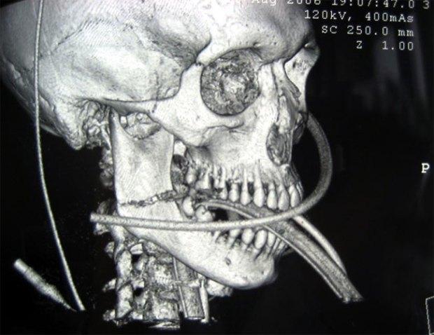 traumatologie-face2