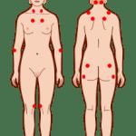 hva er fibromyalgi