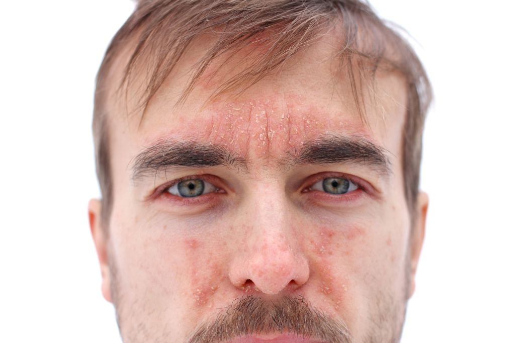 Example of a man with eczema on his face