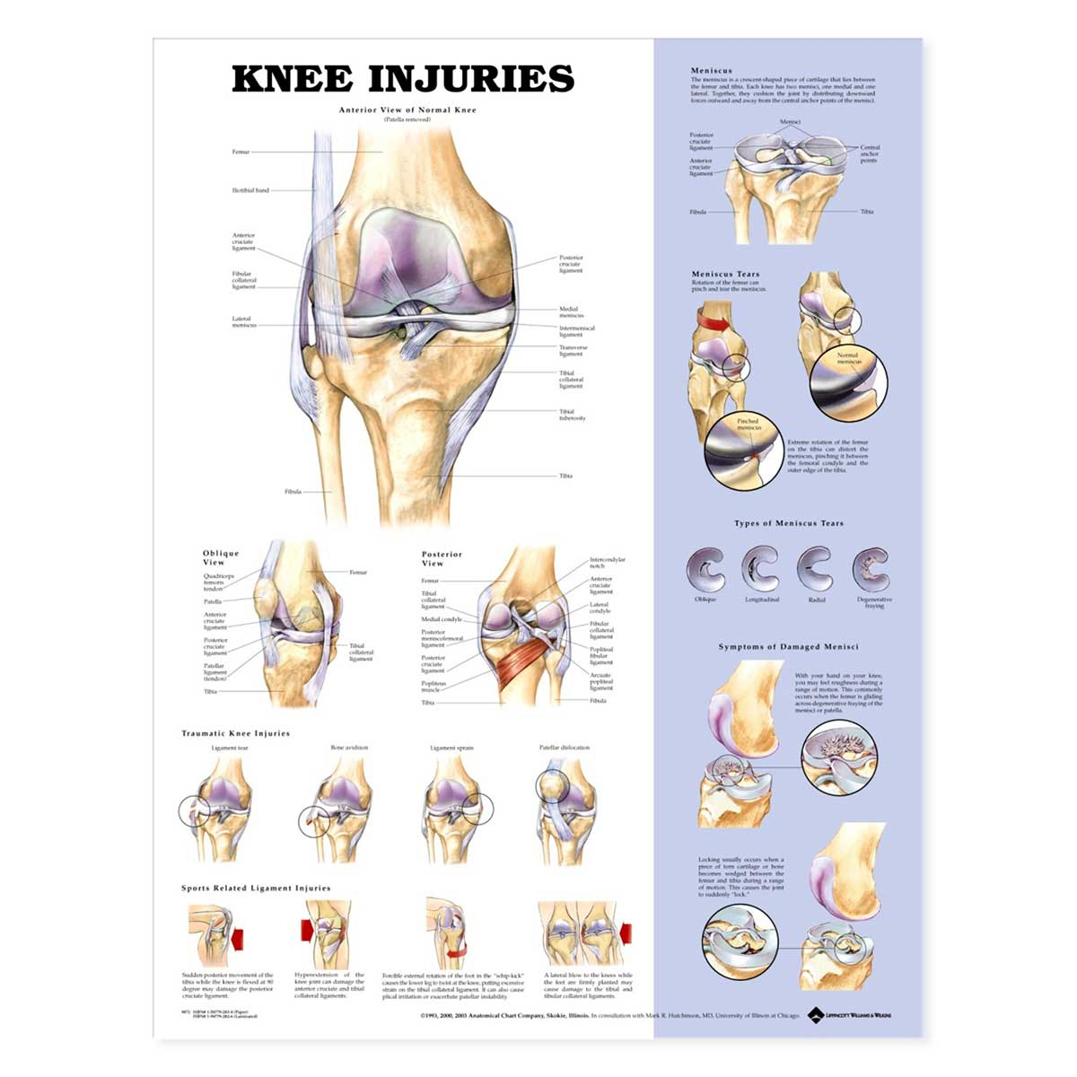 The Knee Injuries Anatomical Charts 20 X 26