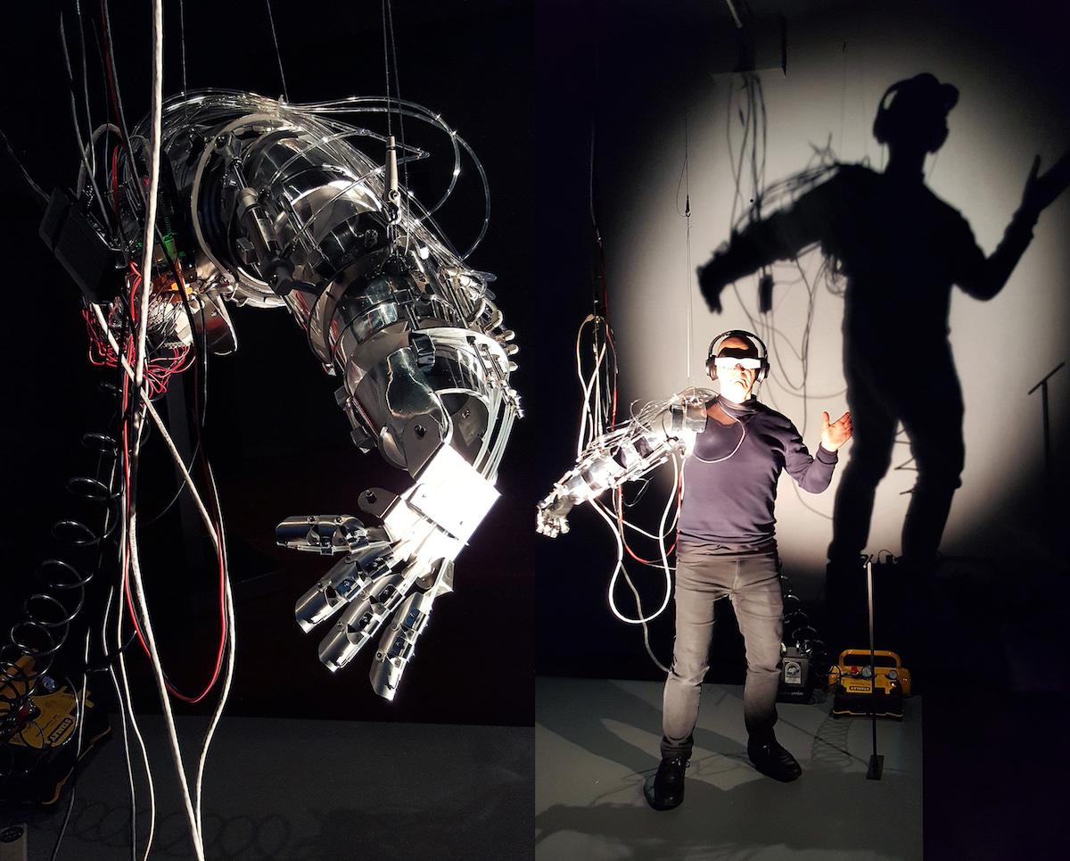 robotics prosthetics improvement body functions performance control