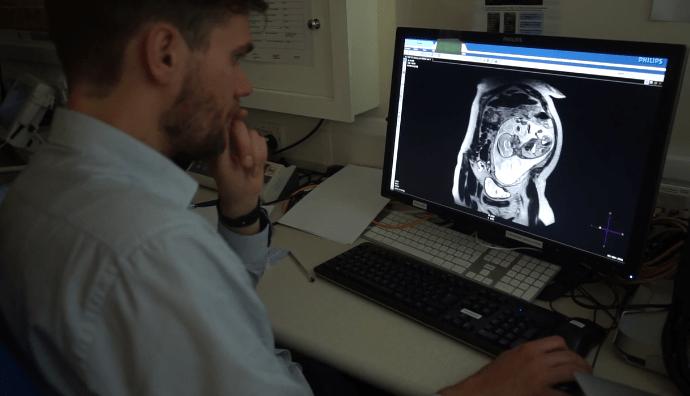 ultrasonidos prenatales del futuro