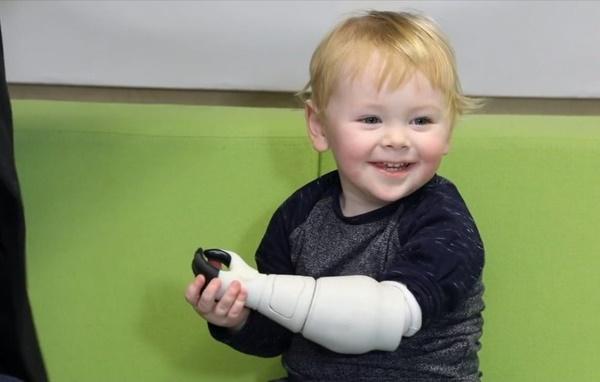 brazo biónico para su hijo