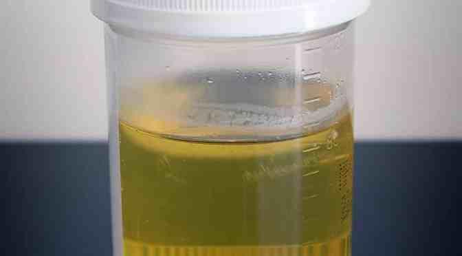 Mýty okolo nás #7 – Je pitie moču výhodné pre dehydrovaného človeka?