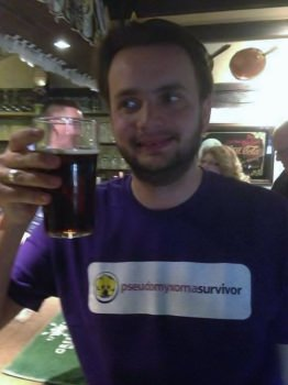 Jonathan enjoying his first pint after his 100 days sober challenge for Pseudomyxoma Survivor
