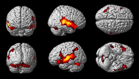 Neuroimágenes