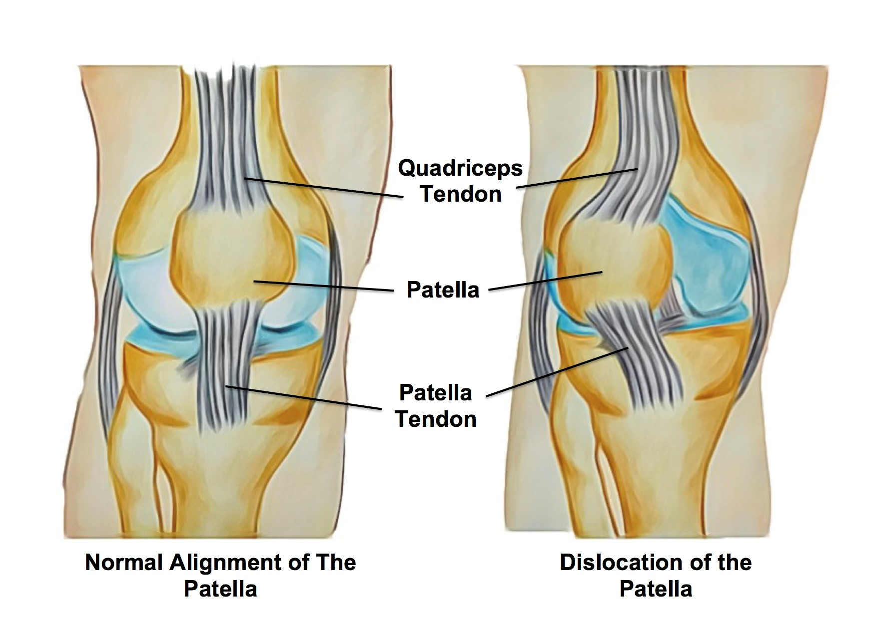 hight resolution of the knee joint is composed of the thigh bone femur and leg bone tibia and a small floating bone at the front commonly known as the kneecap patella
