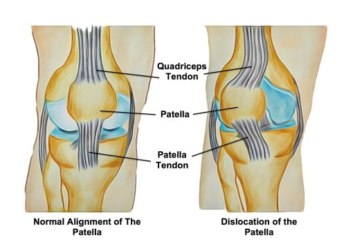 small resolution of the knee joint is composed of the thigh bone femur and leg bone tibia and a small floating bone at the front commonly known as the kneecap patella