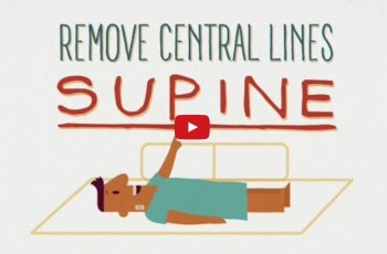 Remove Central Lines Supine