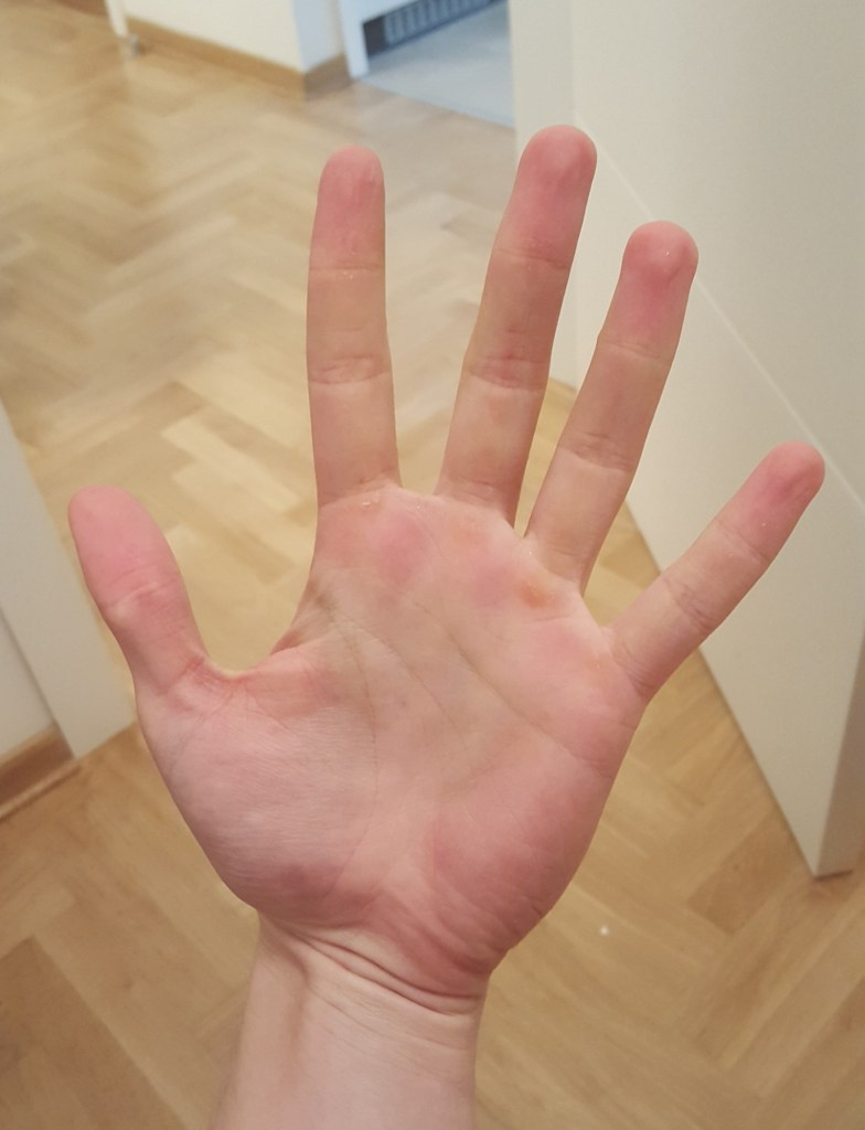 Psoriasis on my left hand