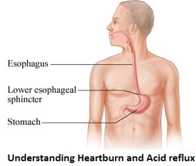 Acid Reflux Is The Upward Flow Of Stomach Acid From Stomach Into The Esophagus Esophagus Is In Simpler Terms Is Food Pipeline From Throat To The Stomach