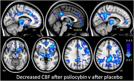 psilocybin brain scan1a