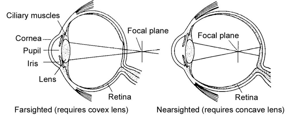 medium resolution of lens shown bending light