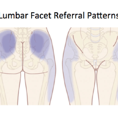 Sacroiliac Joint Diagram Air Brake Parts The Referral Patterns Of Facet Joints And Mechanical Dysfunction At This Level Can Mimic Pain Maignes Syndrome