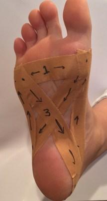 Foot Heel Pain Plantar Fasciitis