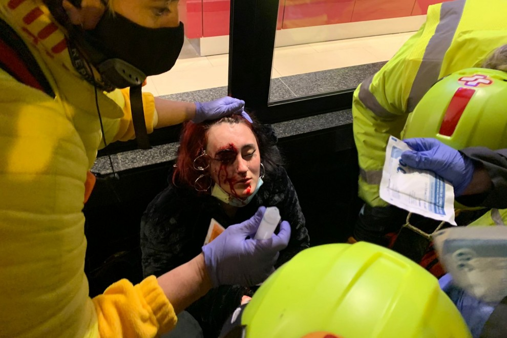 Foto de la mujer herida por una bala foam — Paula Ericsson