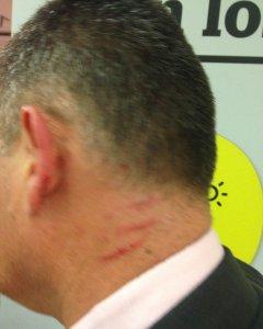 Una de las personas cercadas en la Embajada de Venezuela, herida por un opositor.