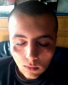 Imagen de la cara del menor tras la agresión por parte de miembros un grupo de extrema derecha.