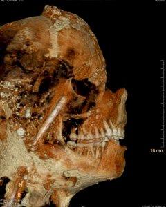 Fotografía de la tomografía axial computarizada de una de las momias de Pompeya. EFE/Pompeii Archeological Superinten